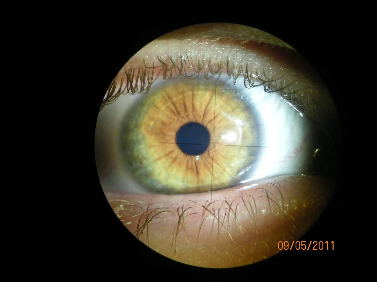 Augen- und Irisdiagnose